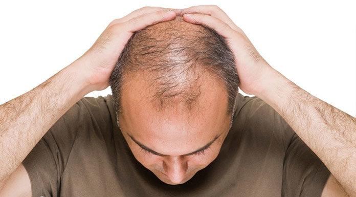 Przeszczep włosów szansą na odzyskanie młodego wyglądu?